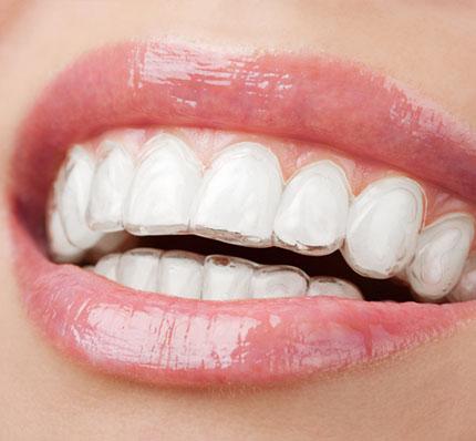 Invisalign denture