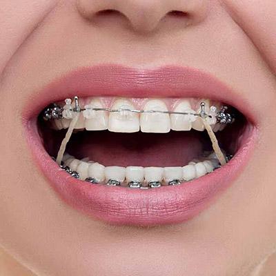 Service - Orthodontics