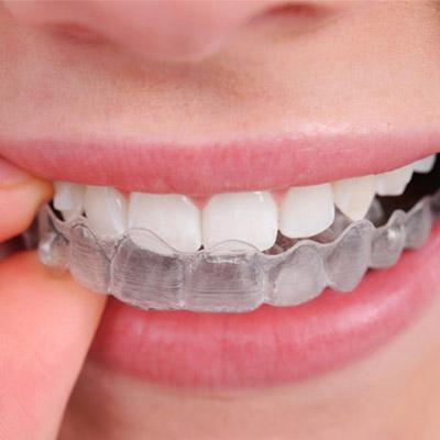 Service - Preventative Dentistry