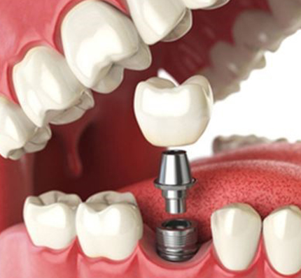 3d representation of dental implants